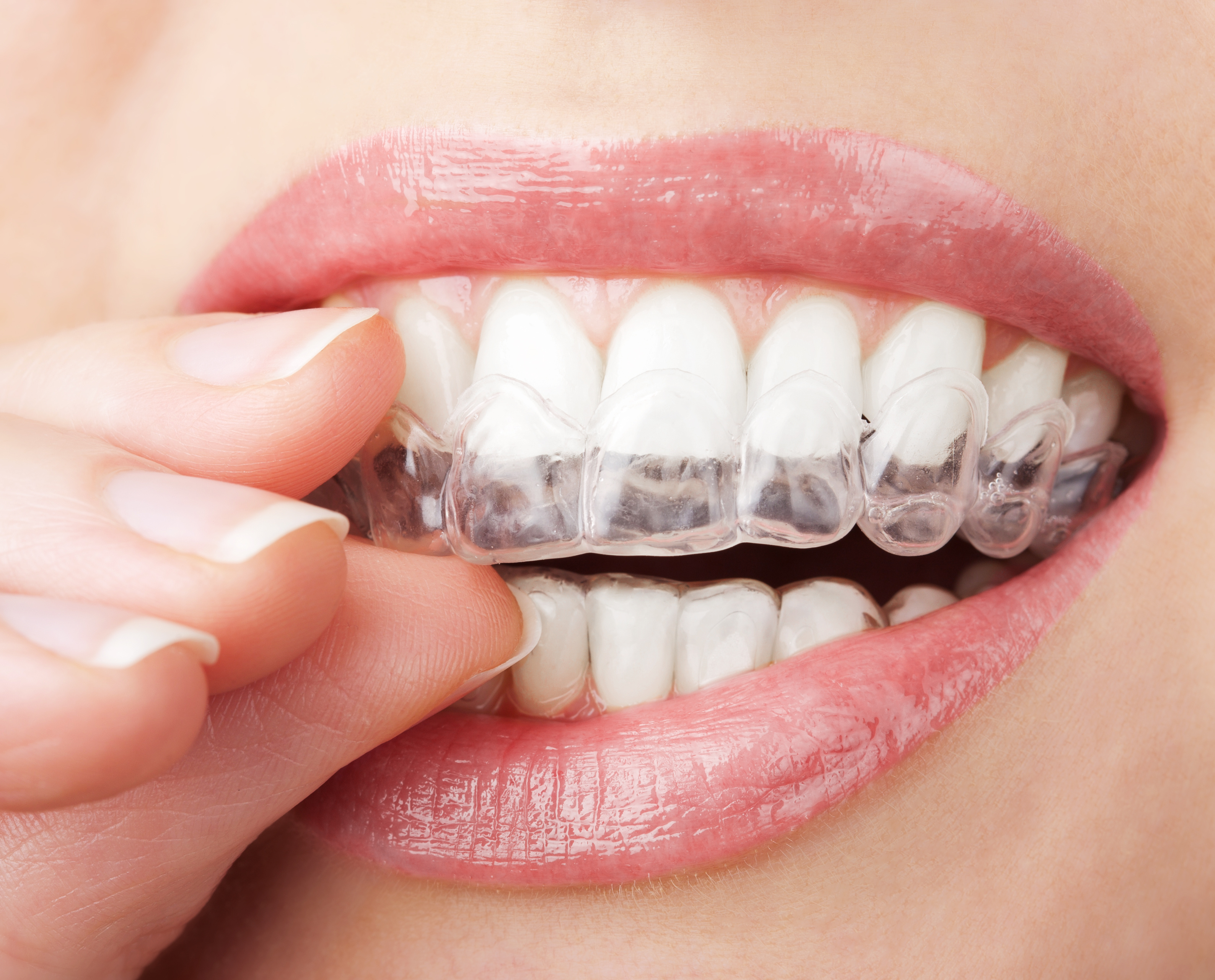 Will Clear Aligners